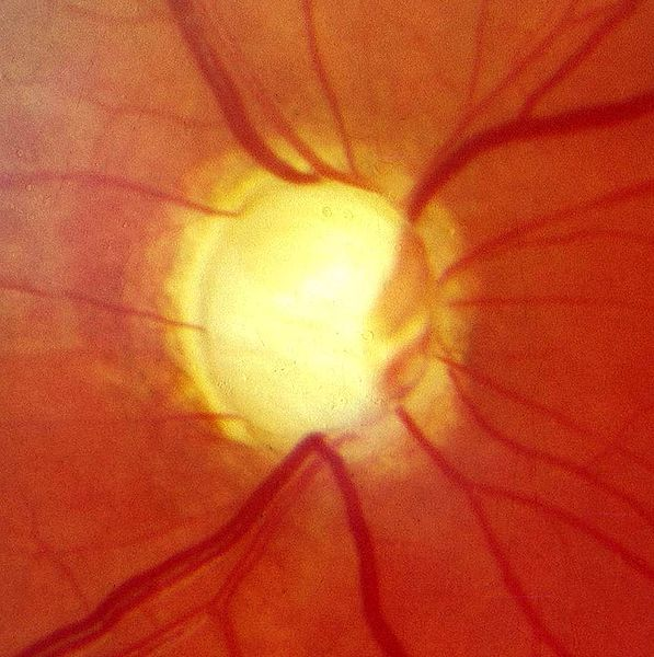 Optic nerve in advanced glaucoma disease by (image courtesy Snoop at German Wikimedia Commons)